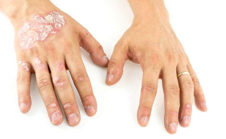 Psoriasi Reumatoide: caratteristiche, cause e rimedi